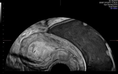 The gynecological ultrasound examination